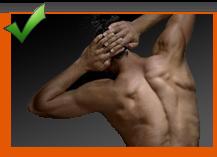 V-formet ryg